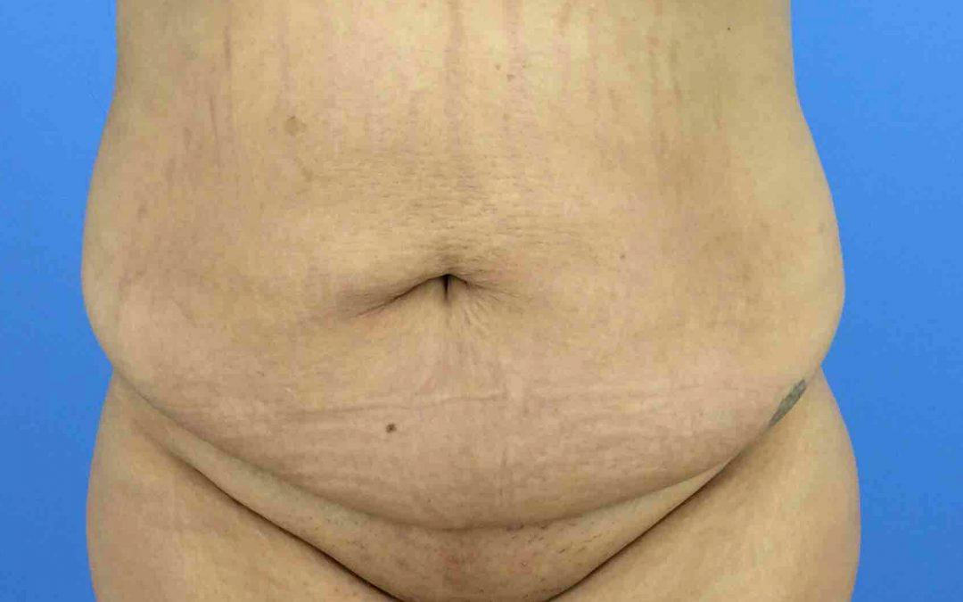 Before and After Abdominoplasty (Tummy Tuck) Case #1019089