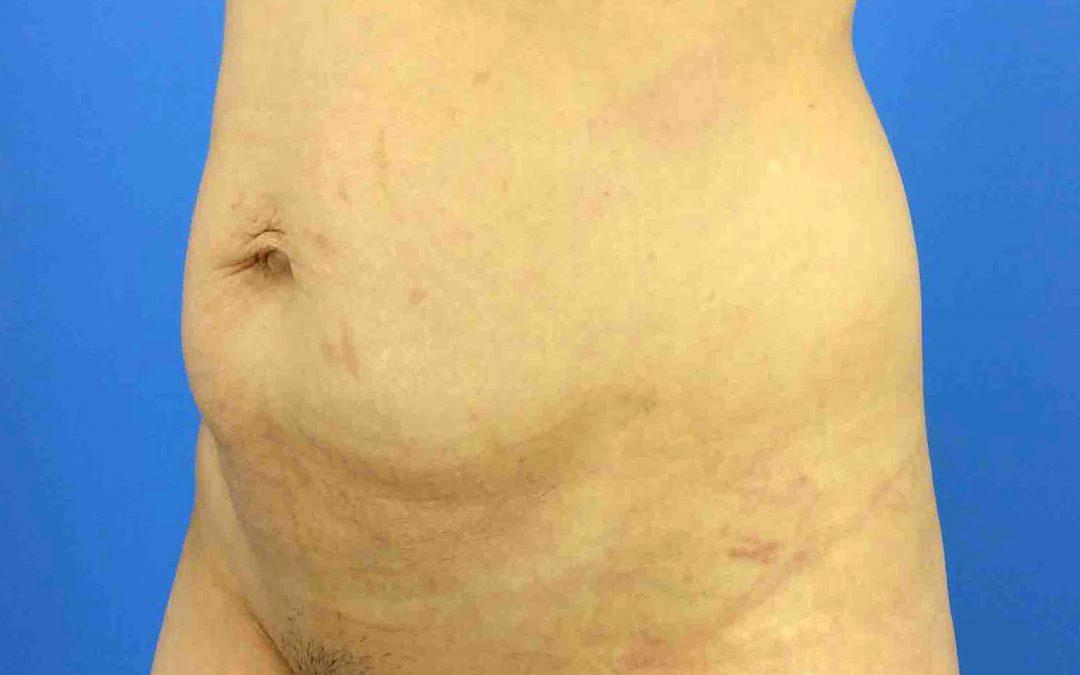 Before and After Abdominoplasty (Tummy Tuck) Case #1021338