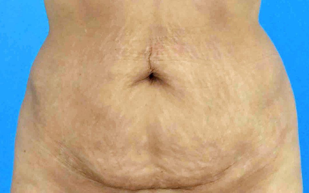 Before and After Abdominoplasty Case #152