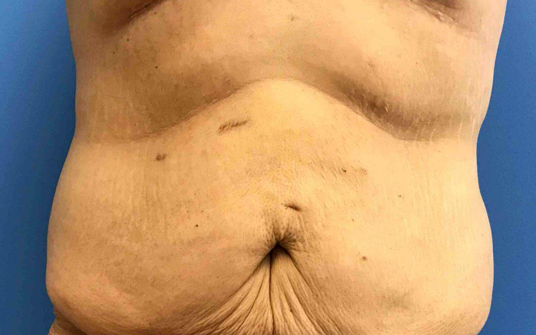 Before and After Abdominoplasty (Tummy Tuck) Case #1029440