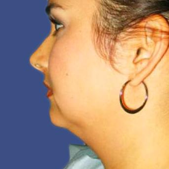 Before and After Facial Liposuction Case 001