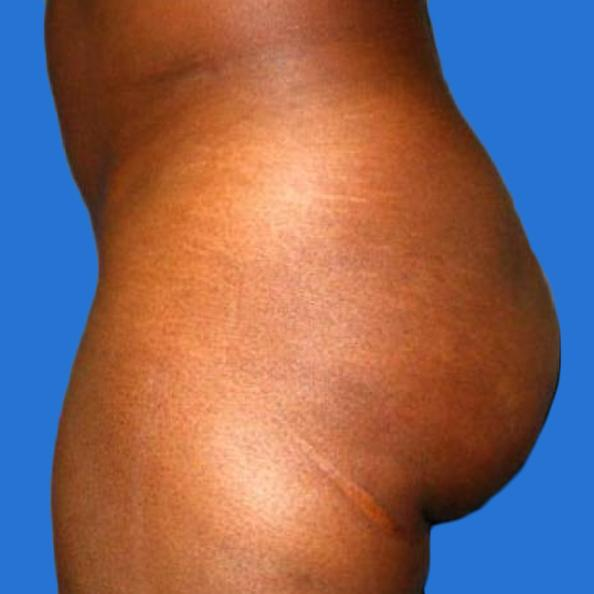Before and After Buttocks Enlargement (implant) Case 001