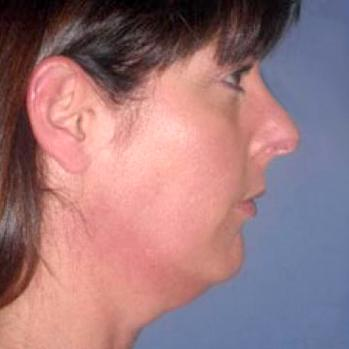 Before and After Chin & Cheek Implants Case 002