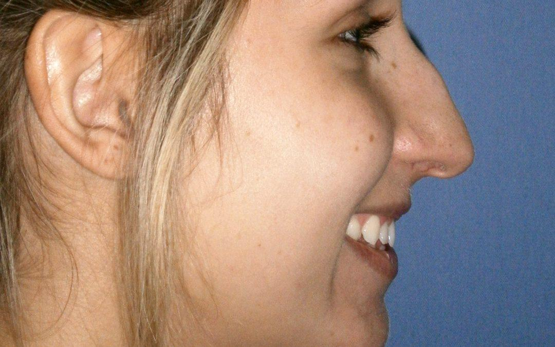 Before and After Chin Augmentation Case #1000010
