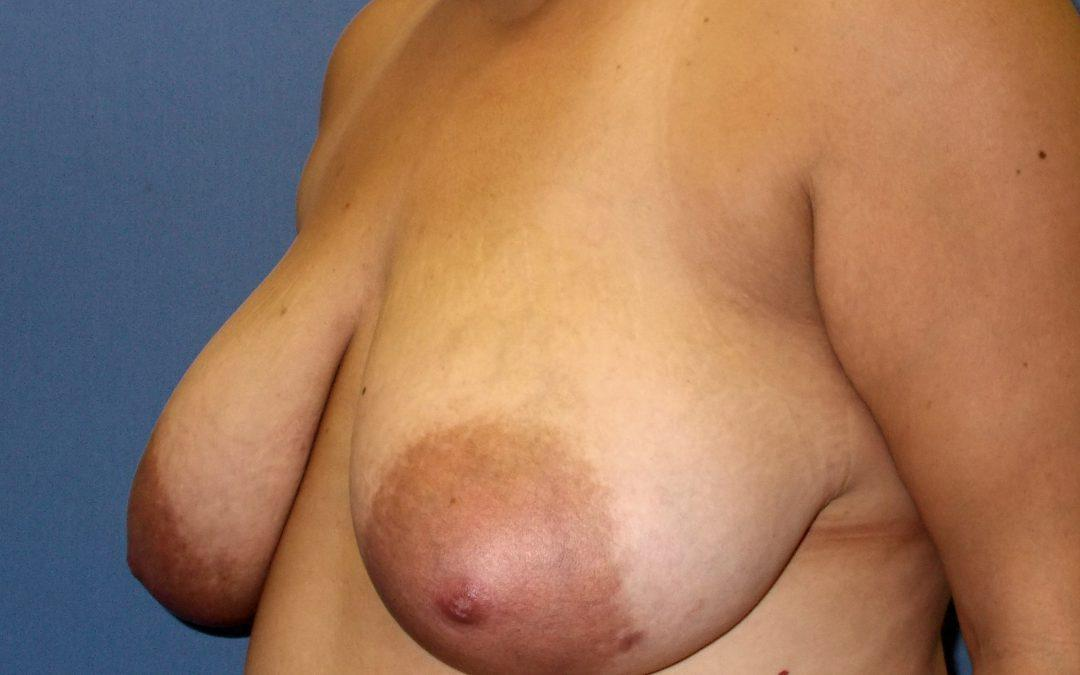 Before and After Breast Reduction Case #1000207