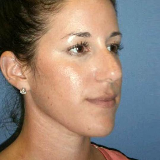 Before and After Rhinoplasty Case #1000827
