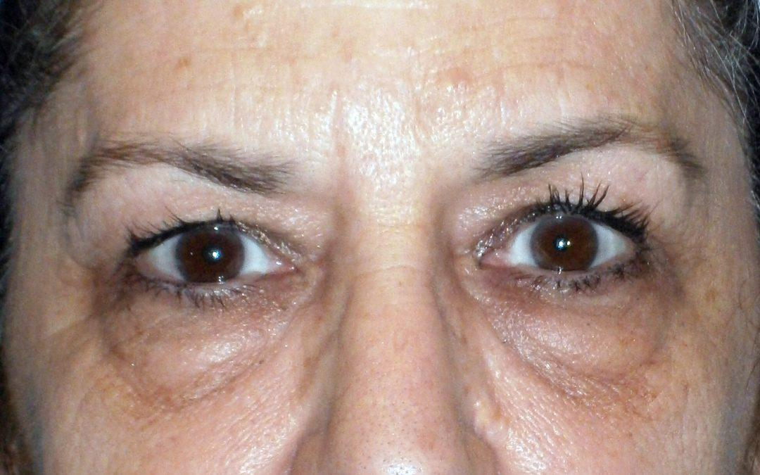 Before and After Eyelid Surgery (Blepharoplasty) Case #1001855