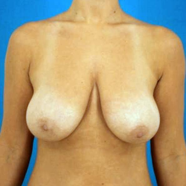 Before and After Breast Augmentation and Mastopexy Case #1004461