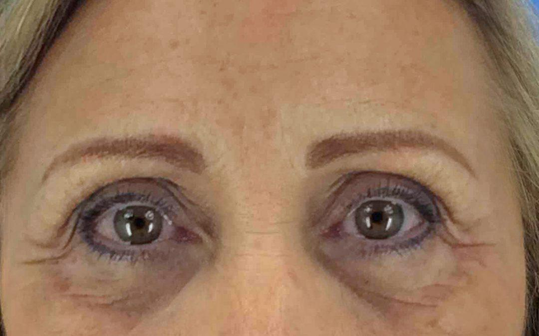 Before and After Fat Injections Case #1094889