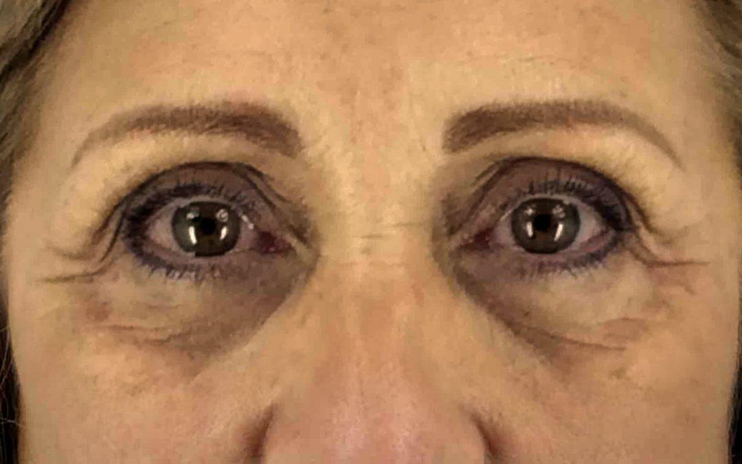 Before and After Eyelid Surgery (Blepharoplasty) Case #1004889