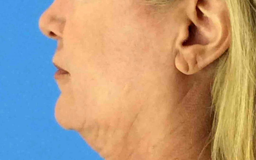 Before and After Neck Lift Case #1007009