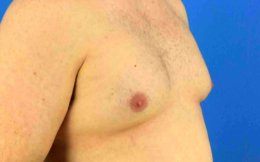 Before and After Gynecomastia Case #1007304