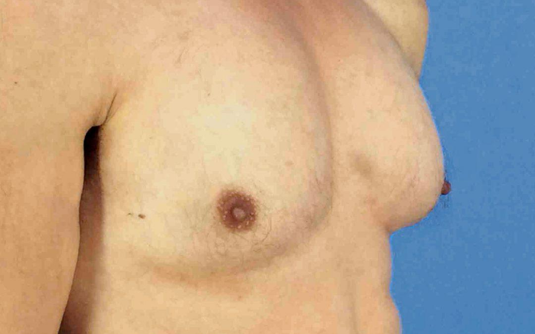 Before and After Gynecomastia Case #1007369