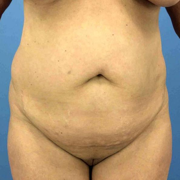 Before and After Liposuction Case #1013571