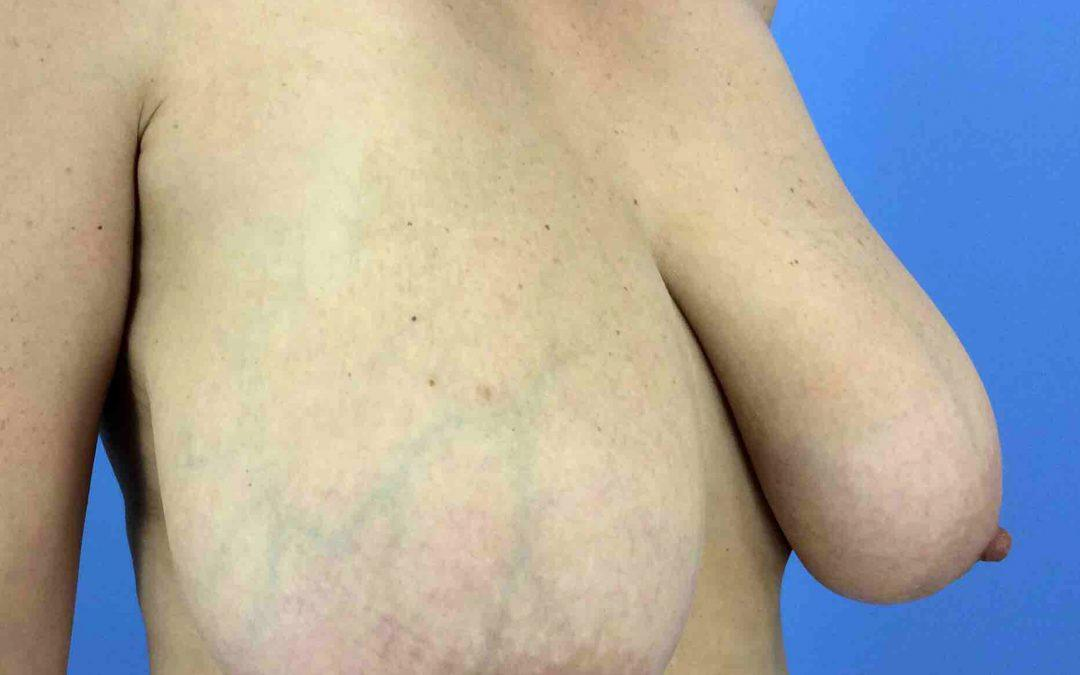 Before and After Breast Reduction Case #1013917