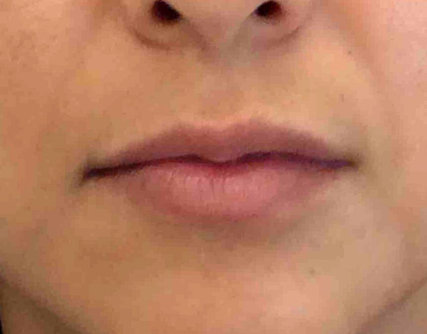 Before and After Juvederm Case #1016095