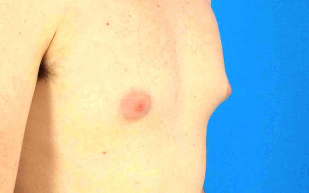 Before and After Gynecomastia Case #1016584