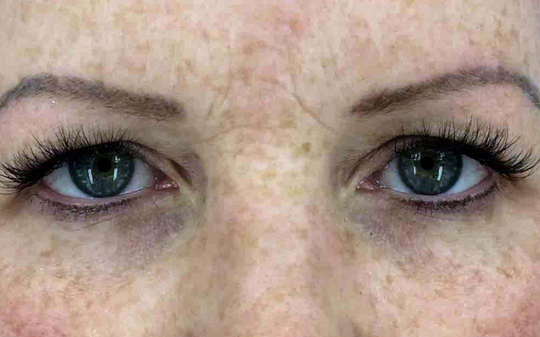 Before and After Brow & Forehead Lift Case #1017697