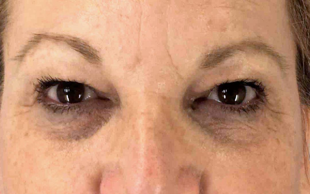 Before and After Eyelid Surgery (Blepharoplasty) Case #1018357