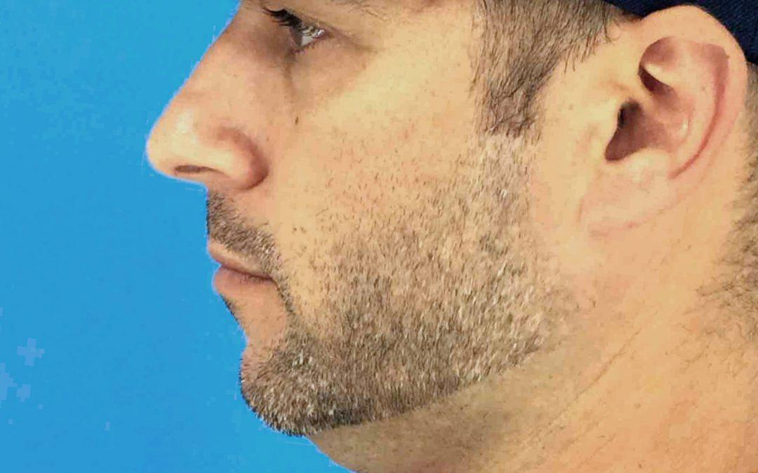 Before and After Kybella #1018388