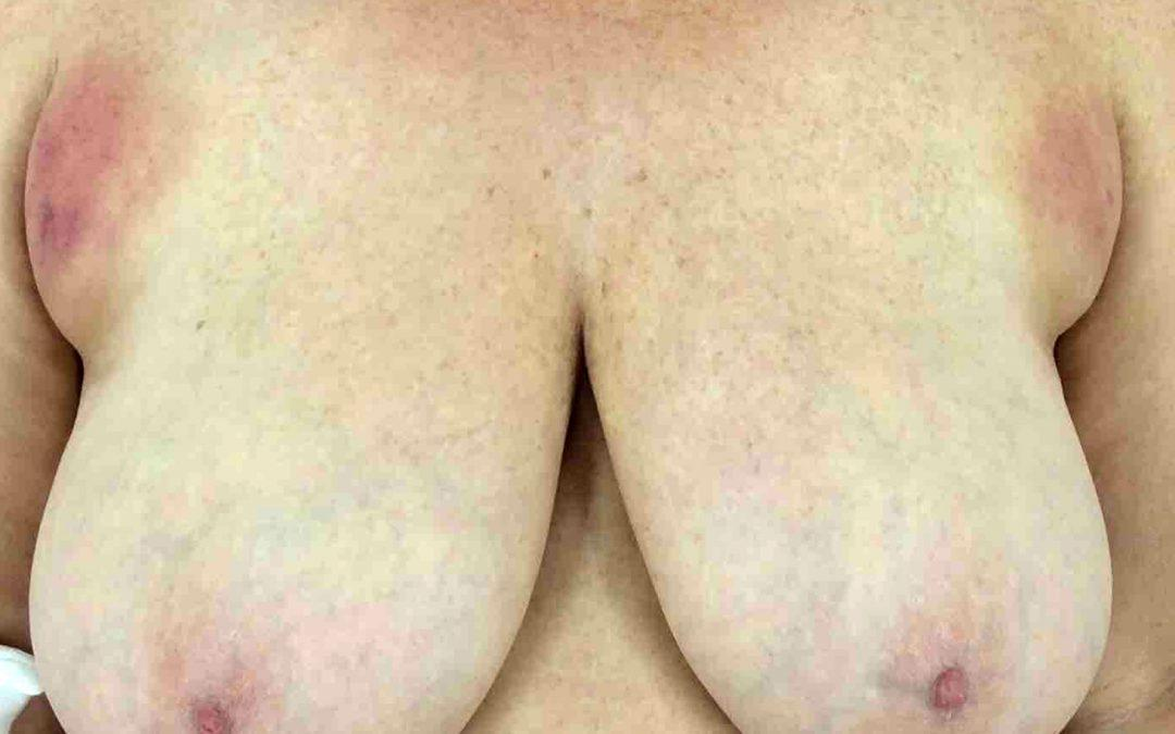 Before and After Breast Reduction Case #1018933