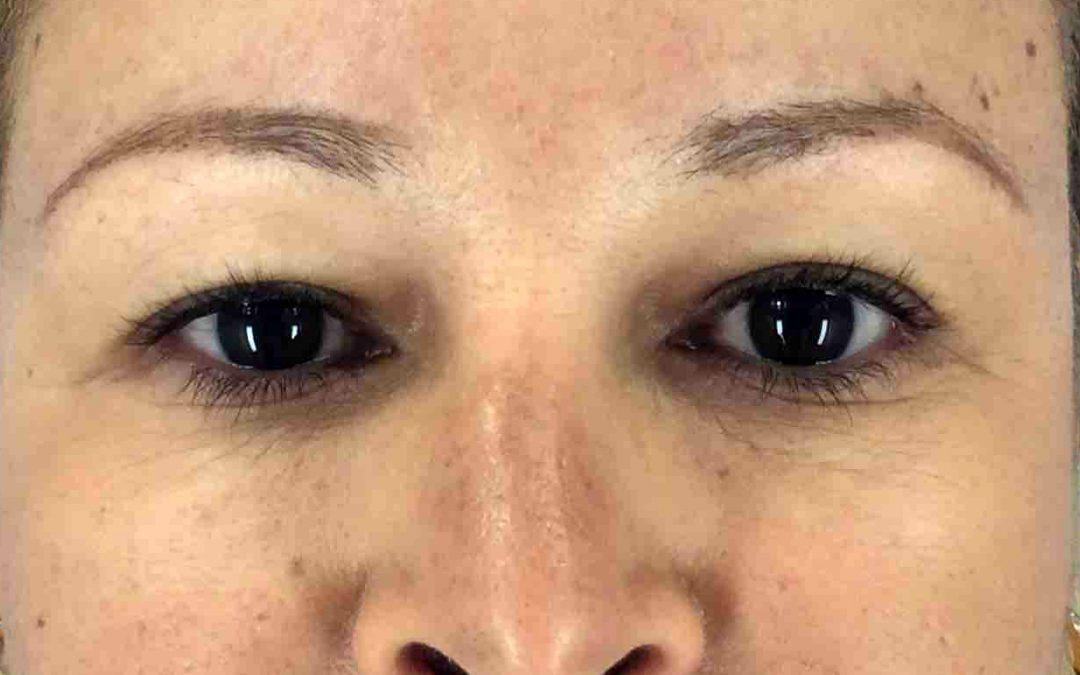 Before and After Eyelid Surgery (Blepharoplasty) Case #1019316