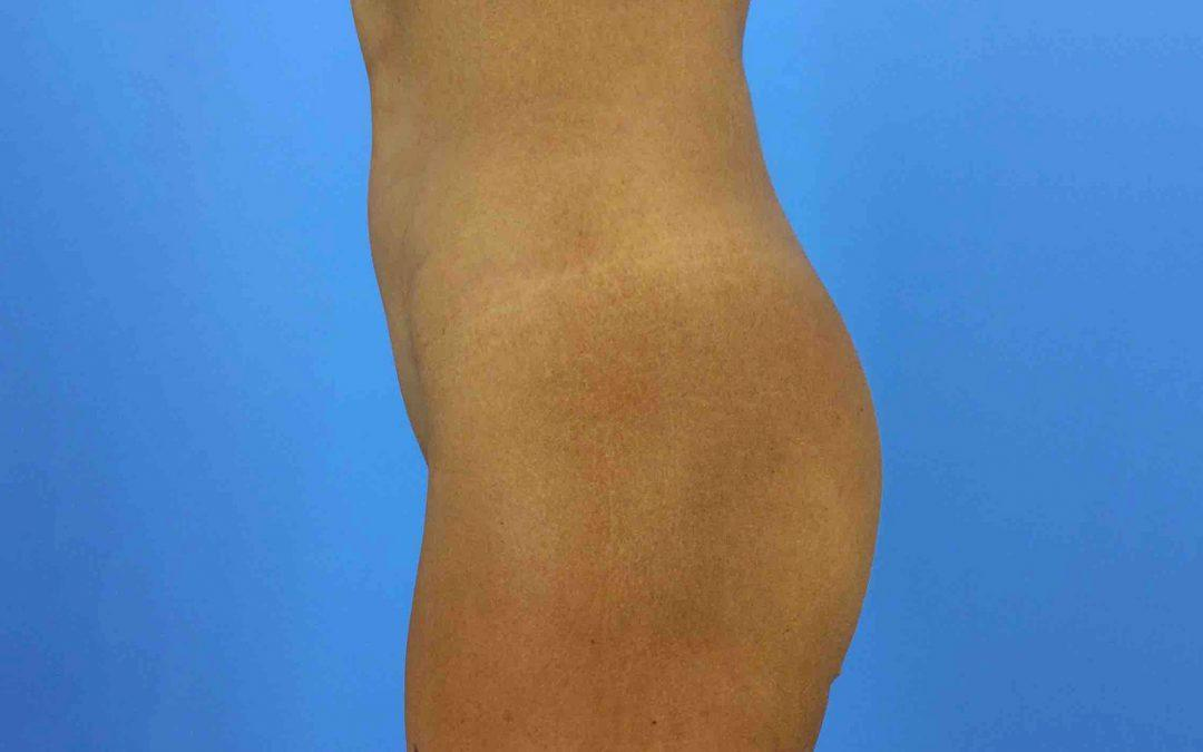 Before and After Buttocks Enlargement (Implants) Case #1019922