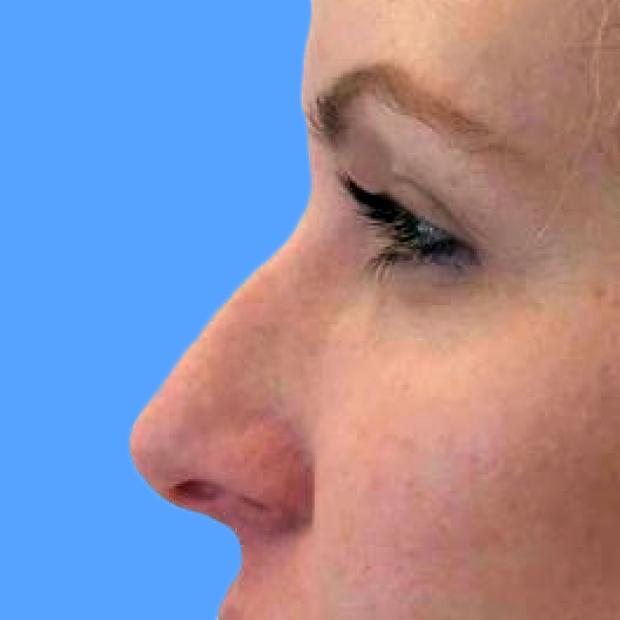 Before and After Juvederm Case #1023084