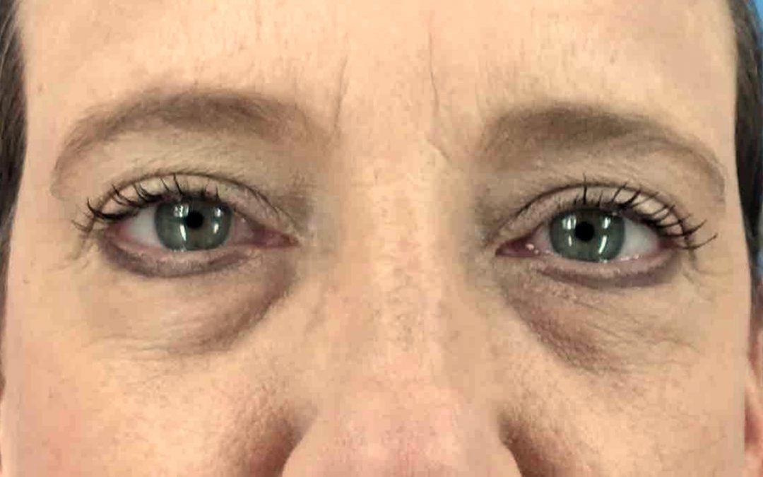 Before and After Eyelid Surgery (Blepharoplasty) Case #1023167
