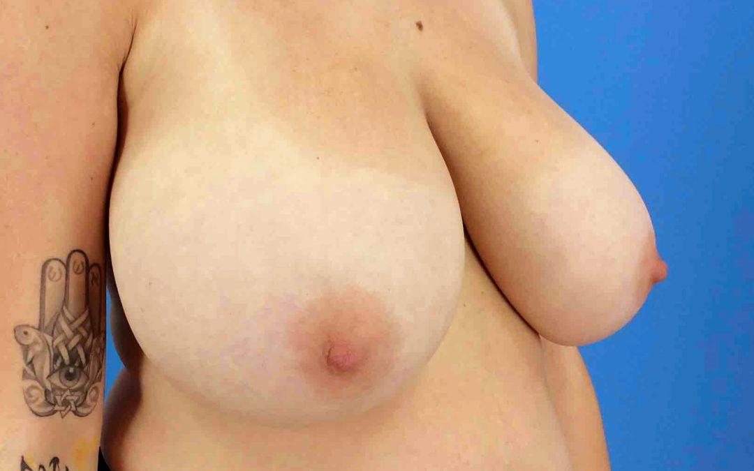 Before and After Breast Reduction Case #1023658