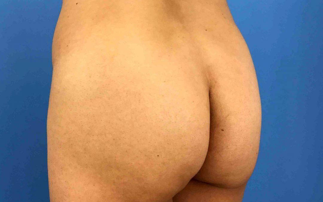 Before and After Brazilian Butt Lift Case #1024950