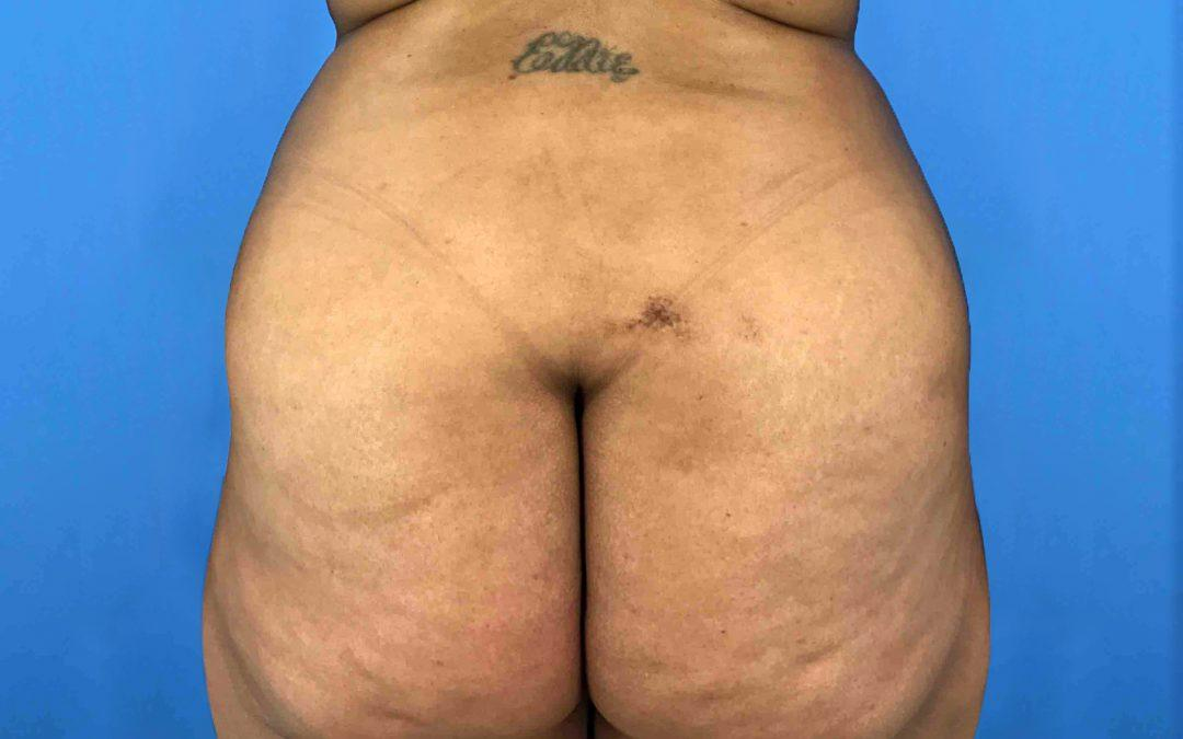 Before and After Brazilian Butt Lift Case #1026244