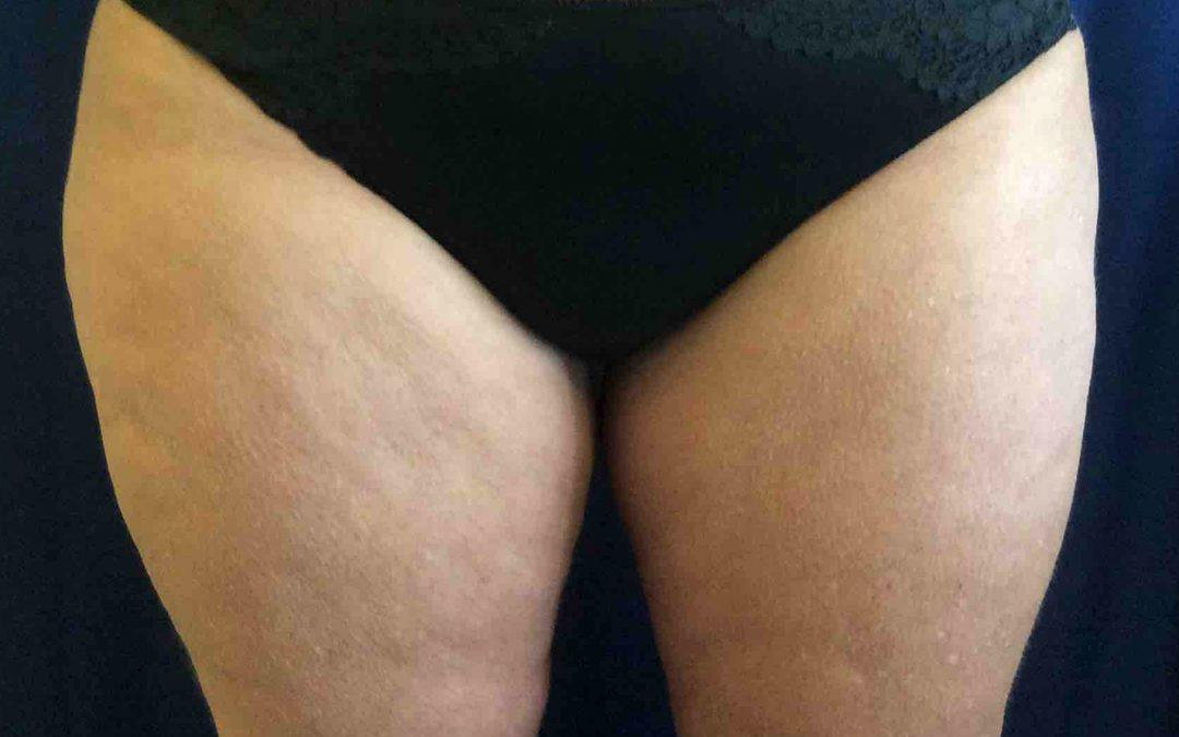 Before and After Coolsculpting Case #1026577