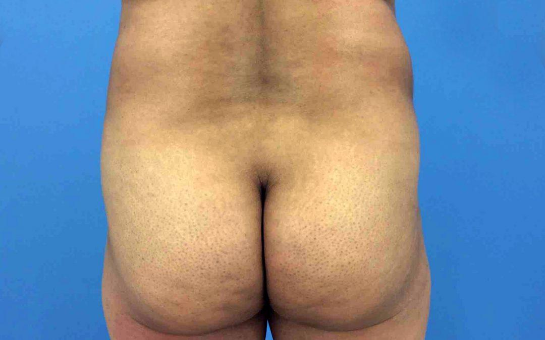 Before and After Brazilian Butt Lift Case #1026723