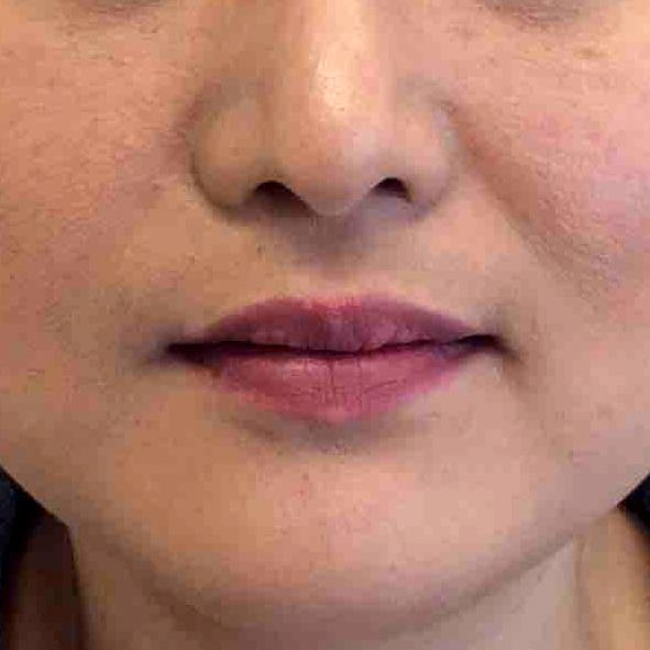 Before and After Juvederm Case #1026880