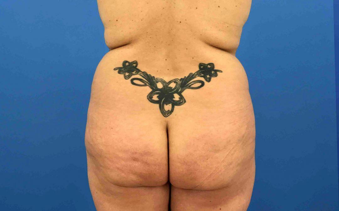 Before and After Brazilian Butt Lift Case #1028217
