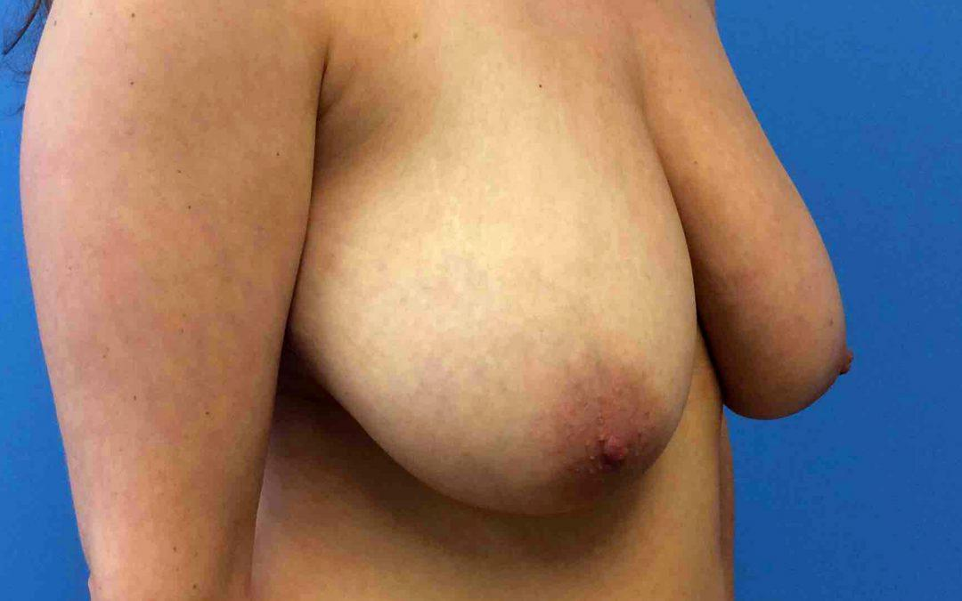 Before and After Breast Reduction Case #1029038