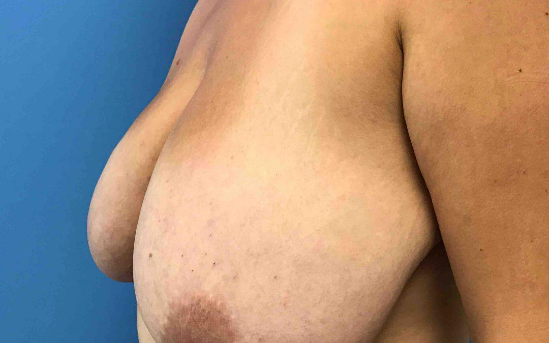 Before and After Breast Reduction Case #1029750