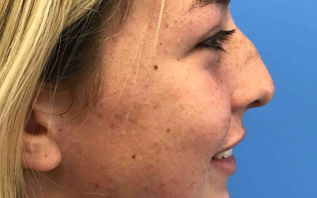 Before and After Rhinoplasty Case #1029936