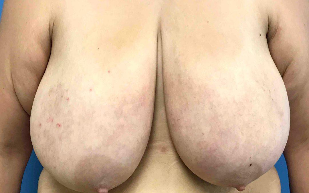 Before and After Breast Reduction Case #1029998