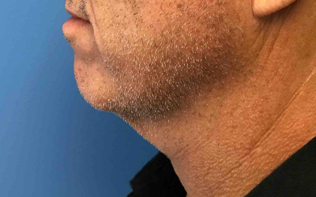 Before and After Neck Lift and Chin Implant Case #1033802
