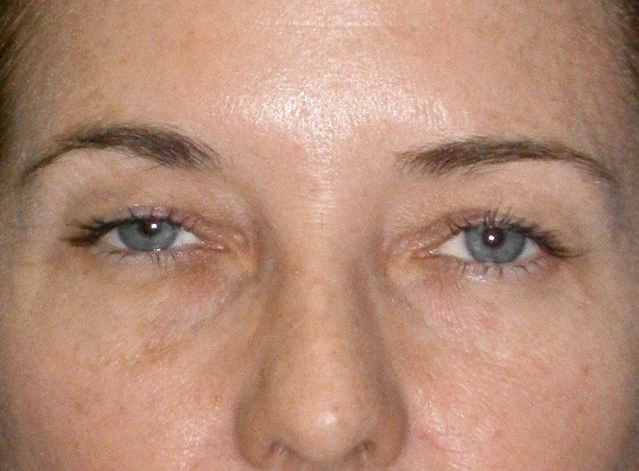 Before and After Eyelid Surgery (Blepharoplasty) Case #11874