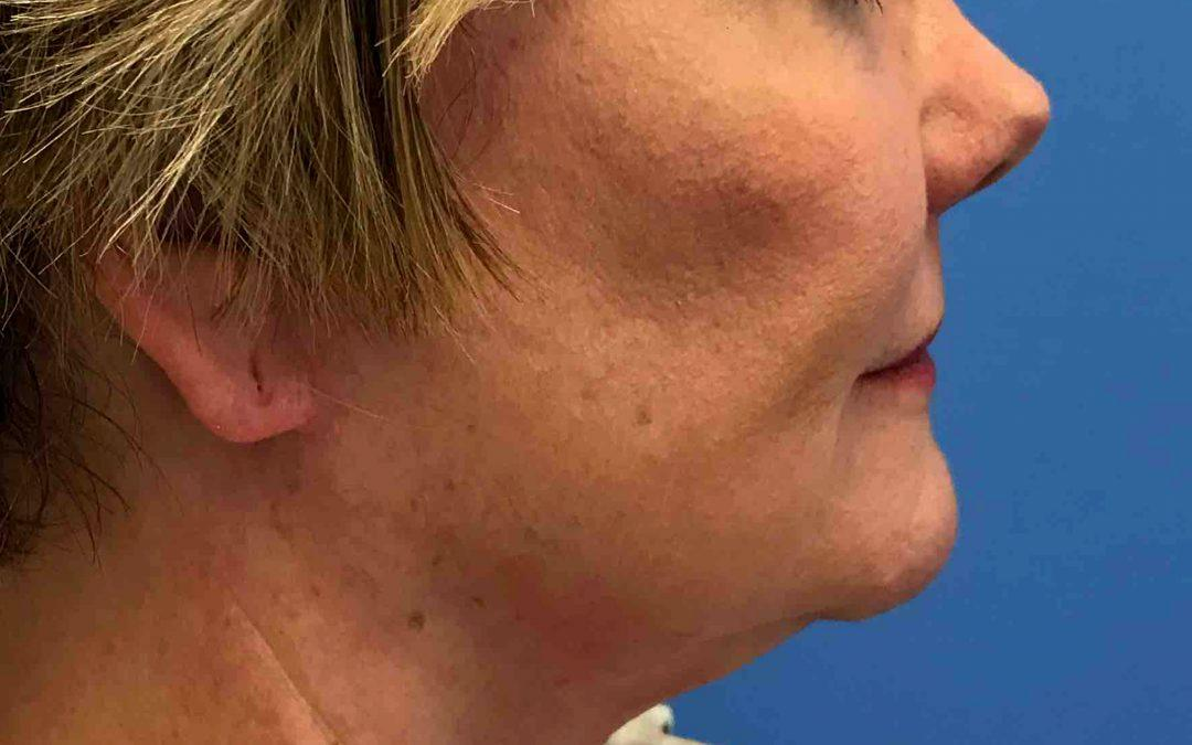 Before and After Neck Lift Case #100258215640