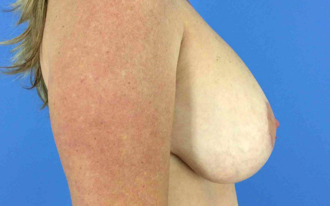 Before and After Breast Reduction Case #16785