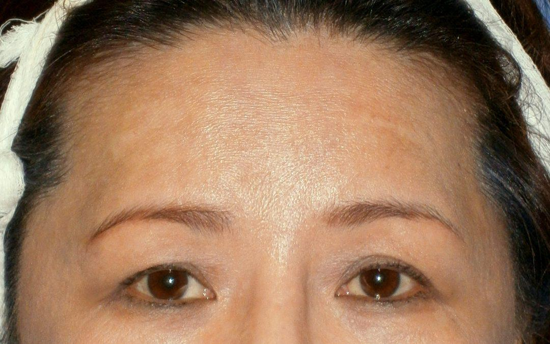 Before and After Brow and Forehead Lift Case #18854