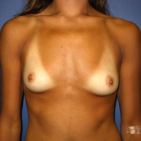 Before and After Breast Augmentation Case #19321