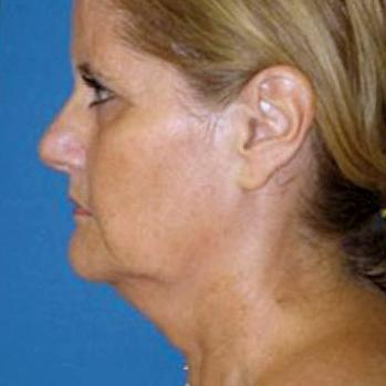 Before and After Neck Lift Case #198739