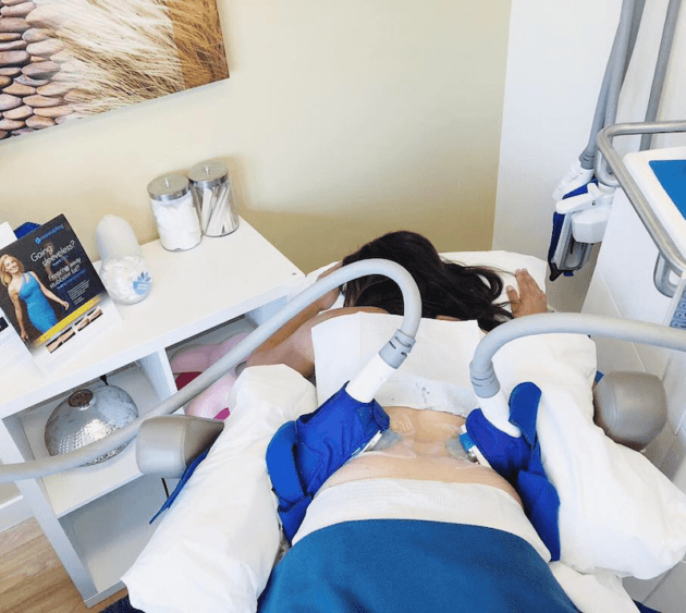 Coolsculpting CycleSave