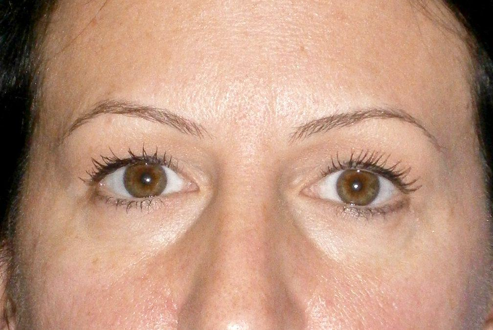 Before and After Eyelid Surgery (Blepharoplasty) Case #22059