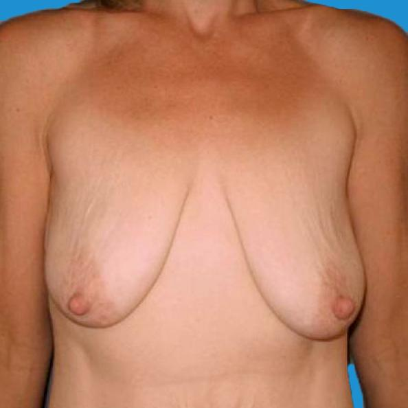 Before and After Breast Lift Case #230606